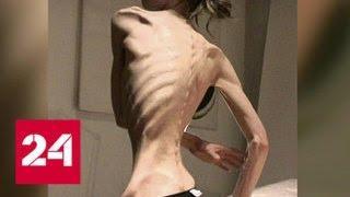 Анорексия: зона риска начинается с 12 лет - Россия 24